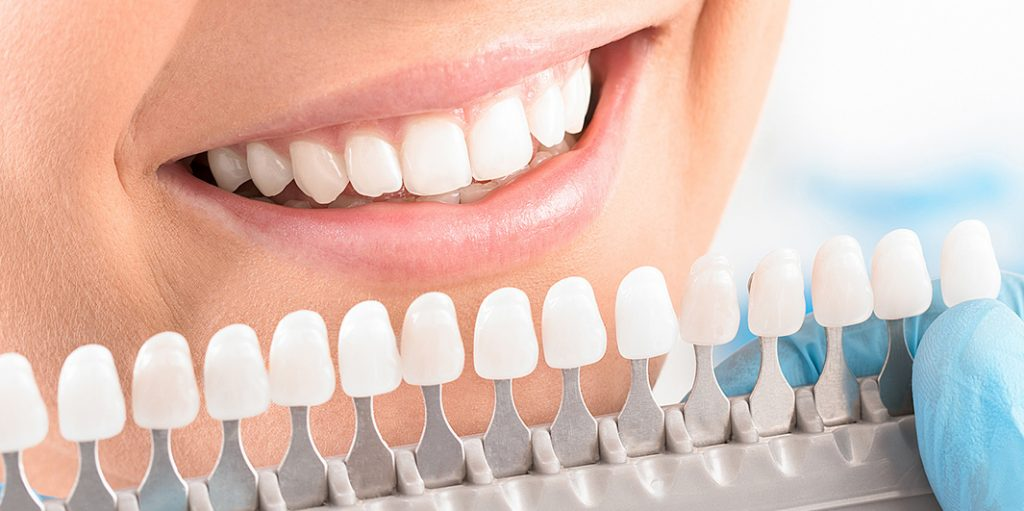 Dental veneers Hamburg, Cosmetic veneers Hamburg