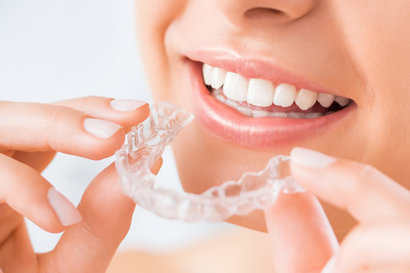 Woman putting in her Invisalign braces