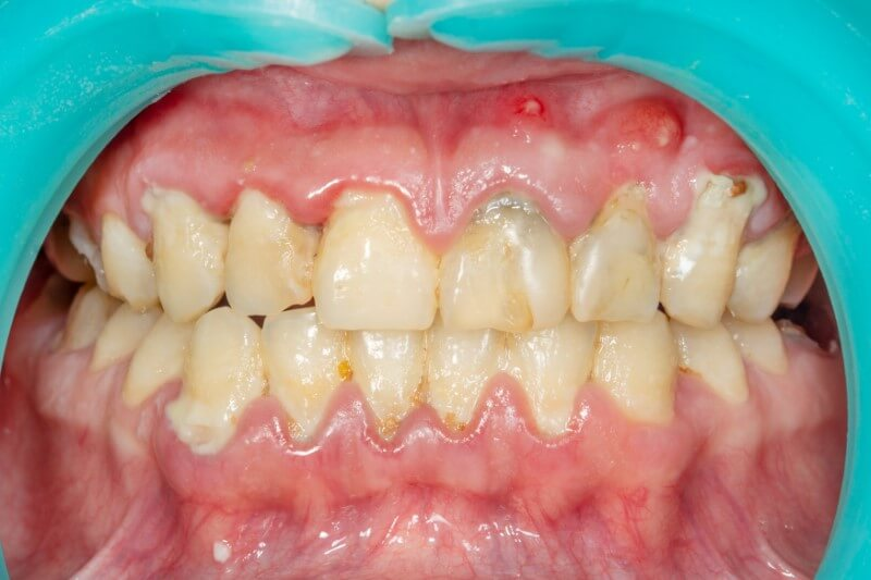 Patient prepped for periodontal cleaning for periodontal disease
