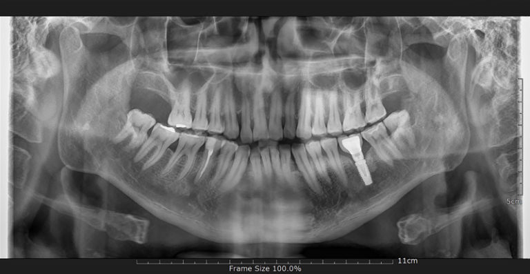 Root Canal VS Dental Implant: Choosing the Best Treatment