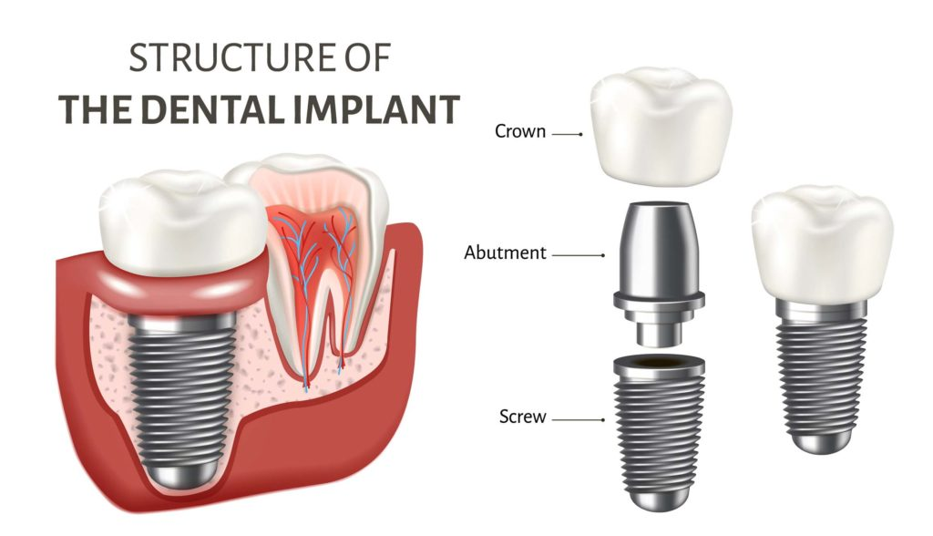 The Structure of a Dental Implant