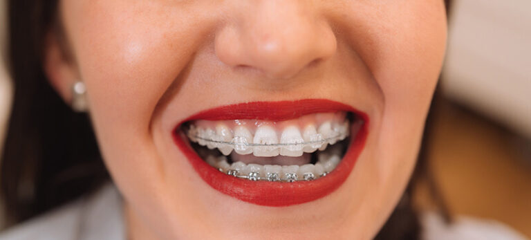 Brace Yourself for the Perfect Smile – How Braces Work